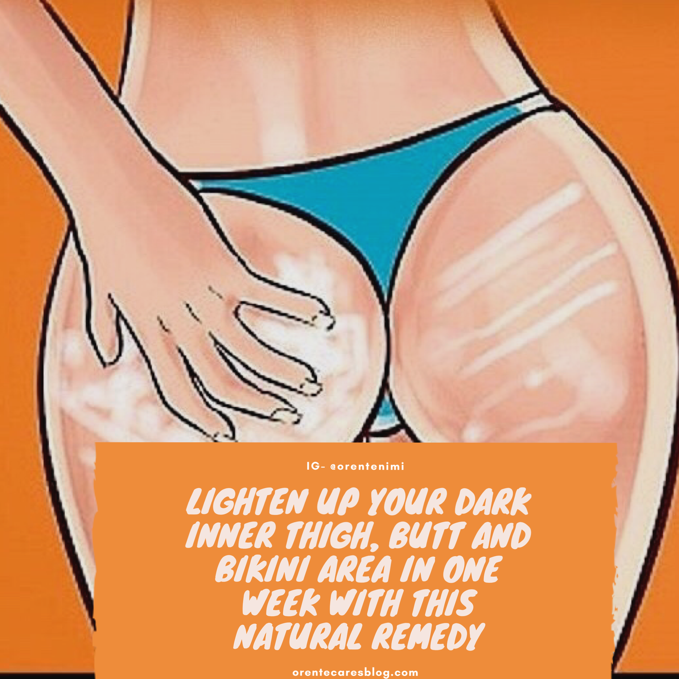 Skincare Lighten Up Your Dark Inner Thigh Butt And Bikini Area In One Week With This Home Remedy Orentecare S Blog